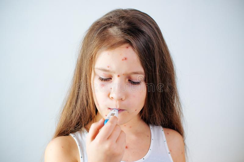 Plan rapproché de petite fille triste mignonne Virus de Varicella ou éruption de bulle de varicelle sur l'enfant photographie stock