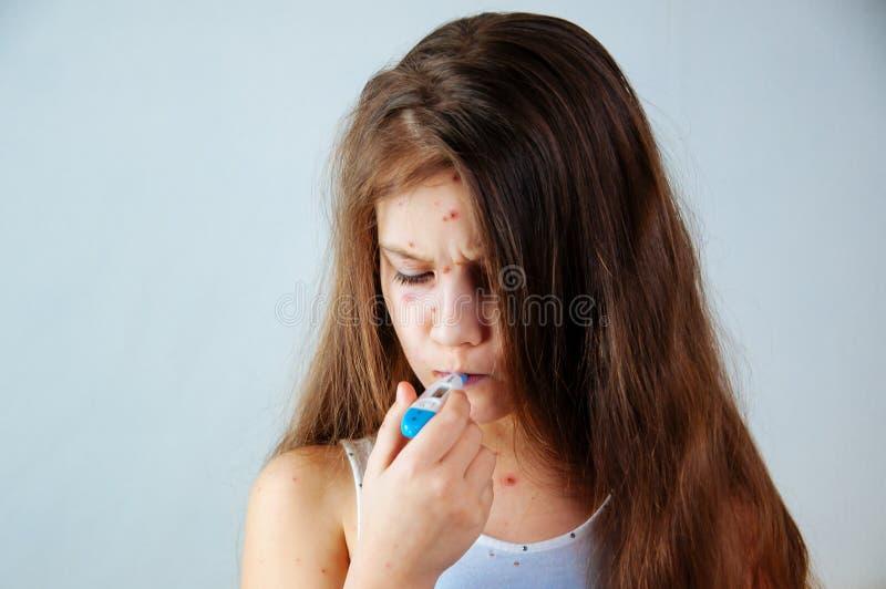 Plan rapproché de petite fille triste mignonne Virus de Varicella ou éruption de bulle de varicelle sur l'enfant image libre de droits