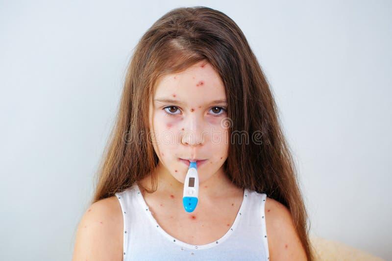 Plan rapproché de petite fille triste mignonne Virus de Varicella ou éruption de bulle de varicelle sur l'enfant photographie stock libre de droits