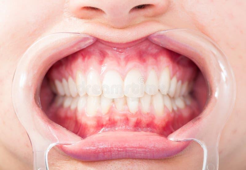 Plan rapproché de vue frontale des dents de blanc de femme photos stock