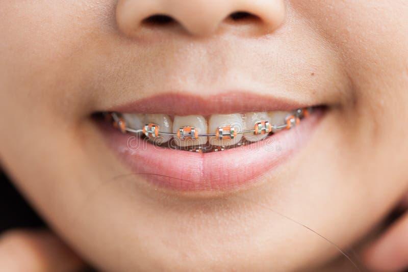 Plan rapproché en céramique et accolades en métal sur des dents photo stock