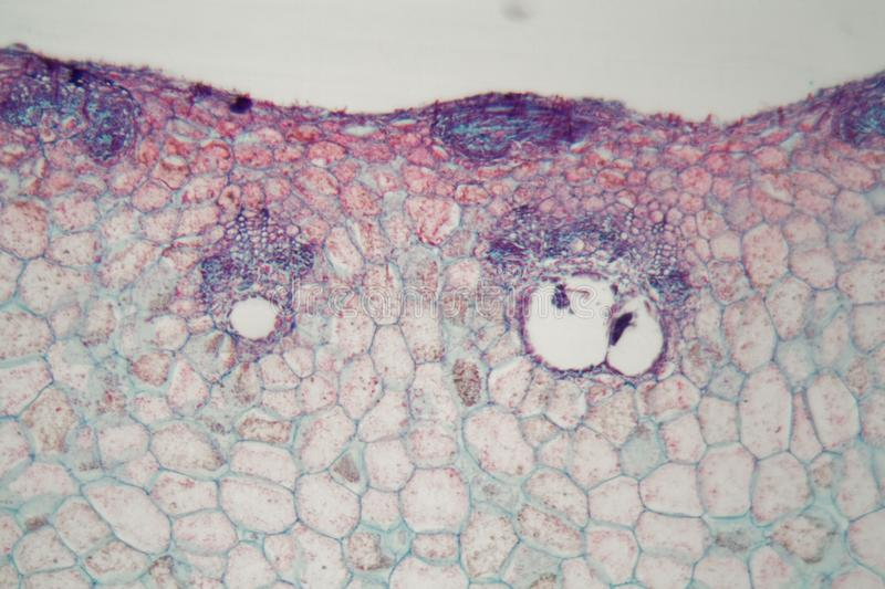 Plant cells with damages caused by a parasitic animal under the microscope. Colored plant cells with damages caused by a parasitic animal under the microscope stock images