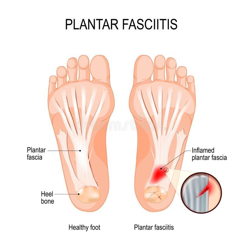 Plantar fasciitis oordning av bindväven som stöttar bågen av foten stock illustrationer