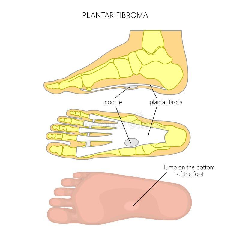 Plantar Fibroma Stock Vector Illustration Of Illustration 76806011