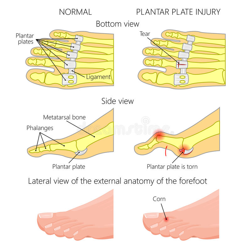 Plantar Plate Tear. Hammer Toe Stock Vector - Illustration of ...