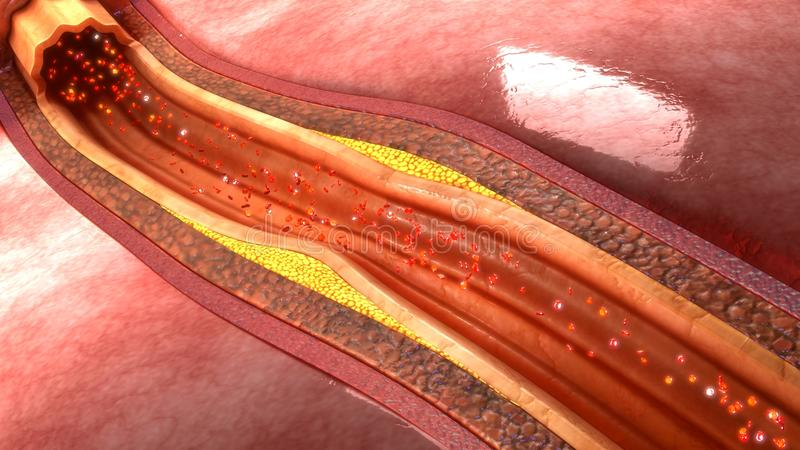 Plaque d'artère coronaire image stock