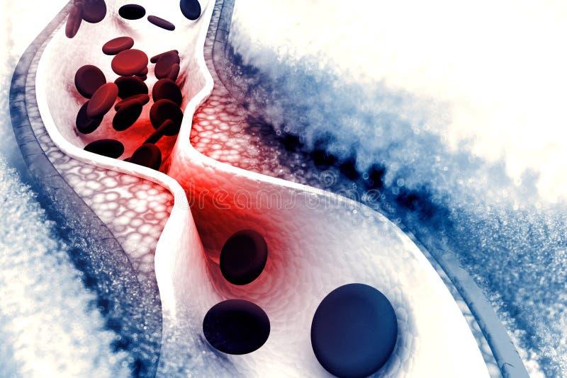 Plaque de cholestérol dans l'artère illustration de vecteur