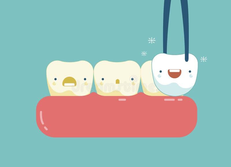 Plaque des dents de concept dentaire illustration libre de droits
