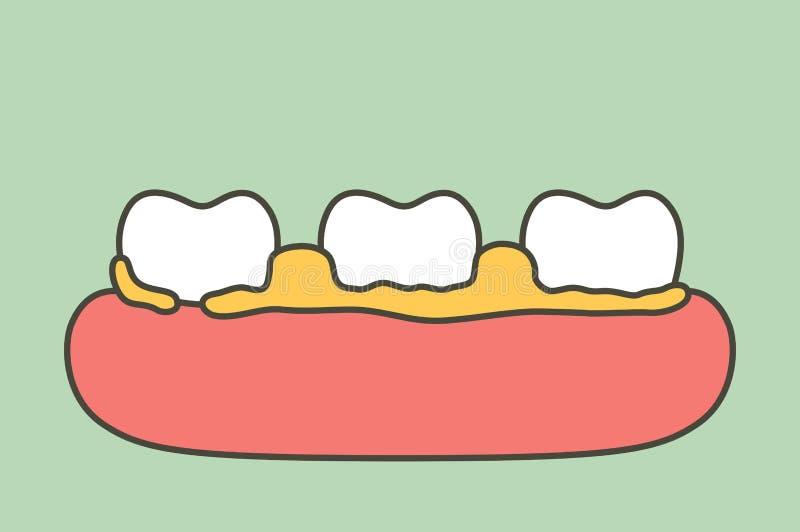 Plaque ou tartre, cause de la maladie parodontale de dent illustration de vecteur