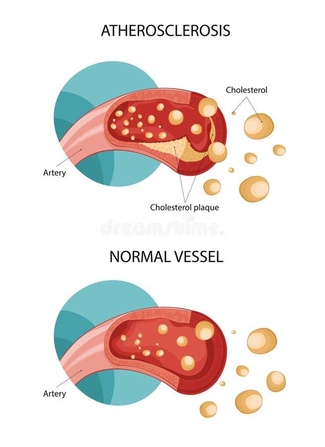 Plaques de Holesterol illustration de vecteur