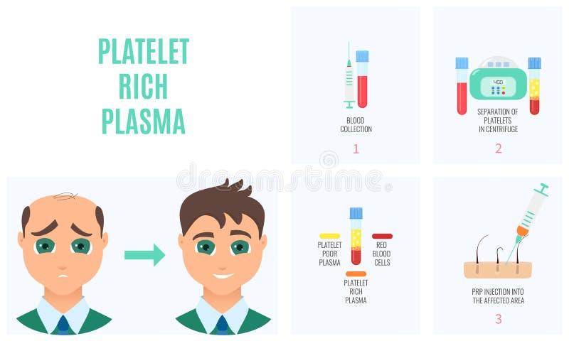 Plasma dos ricos da plaqueta ilustração stock