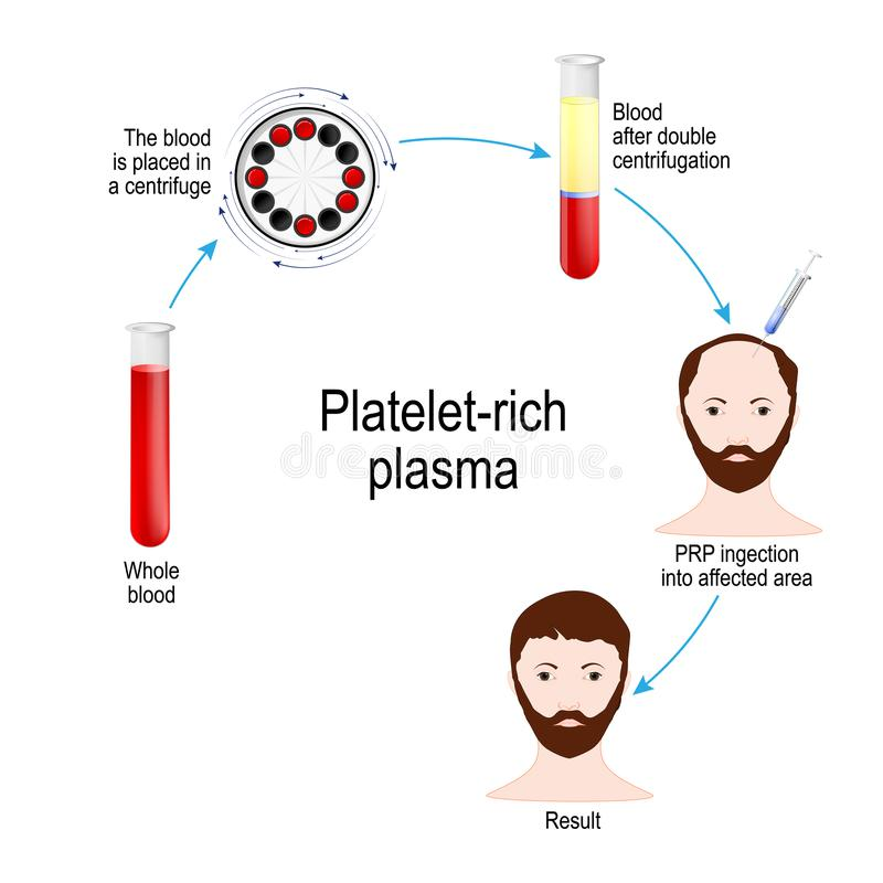 plasma riche en plaquette Thérapie de cheveux de PRP Marche à suivre médicale illustration de vecteur