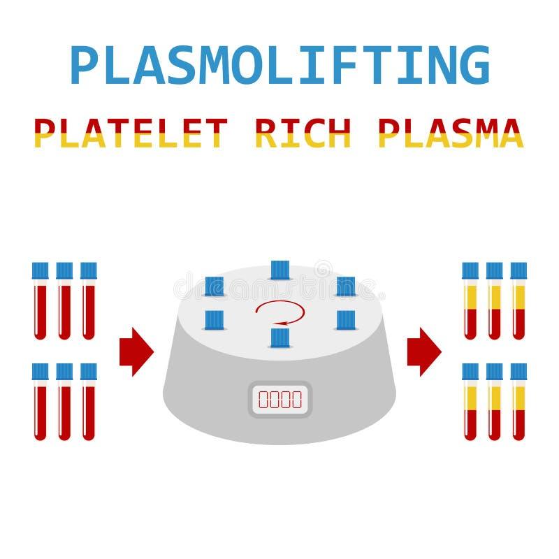 Plasmolifting Plasma de riches de plaquette Méthode de PRP Vecteur illustration stock
