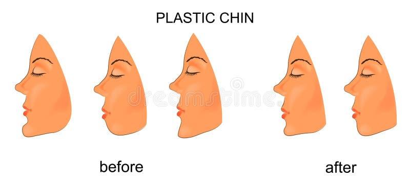 Plast- haka kirurgi stock illustrationer