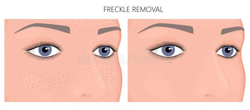 Plast- surgery_Freckleborttagning stock illustrationer