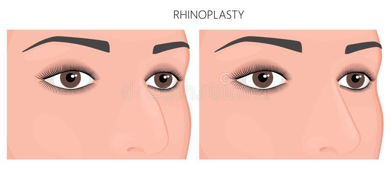 Plast- surgery_Nosejobb eller rhinoplasty royaltyfri illustrationer