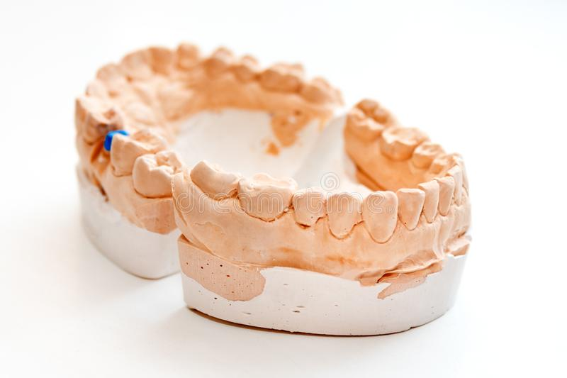 Plaster Cast of jaws. Dental casting gypsum model human Jaws in prosthetic laboratory. Dentistry, Orthodontics. Close up royalty free stock photography