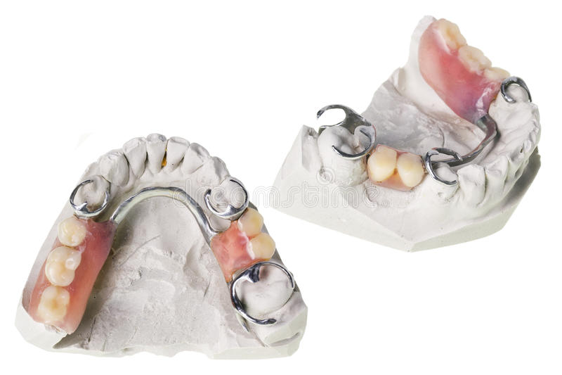Download Plaster Cast Of  Teeth And Dentures Stock Photography - Image: 25857582