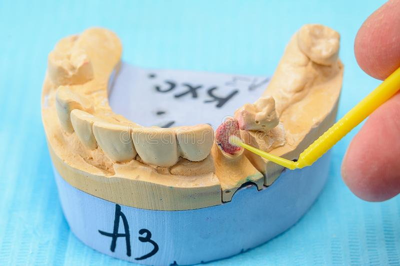 Plaster models of the jaws in the hands of a dental technician in a dental laboratory. Manufacturing dental prostheses stock image