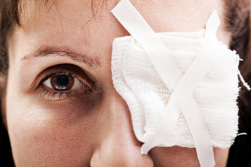 Plaster patch on wound eye stock image
