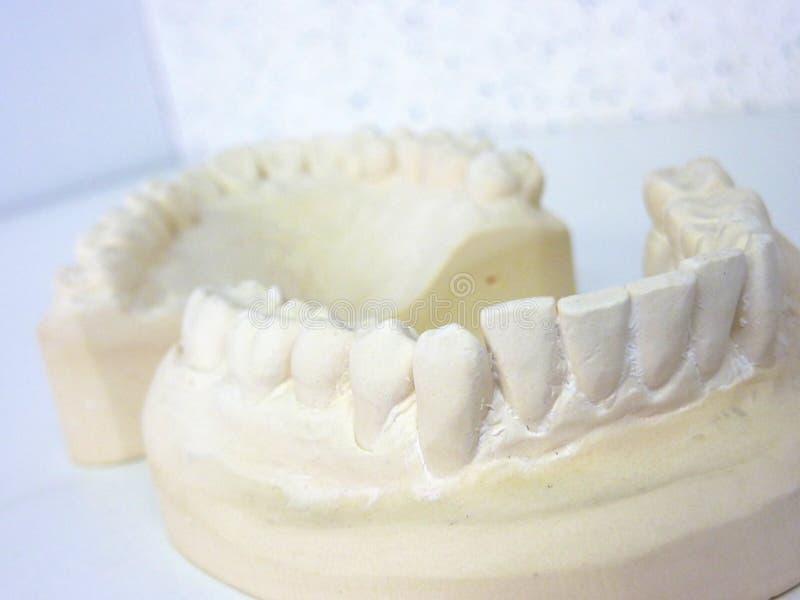 Download Plaster teeth stock image. Image of medical, dentists - 13383201
