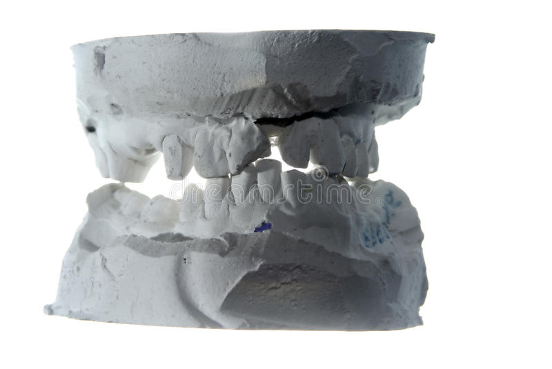 Download Plaster teeth cast stock photo. Image of cutting, doctor - 19048870