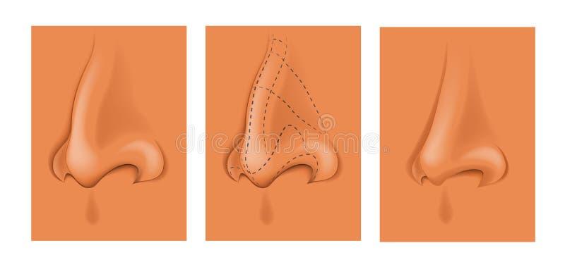 Plastic neus Esthetische chirurgie royalty-vrije illustratie