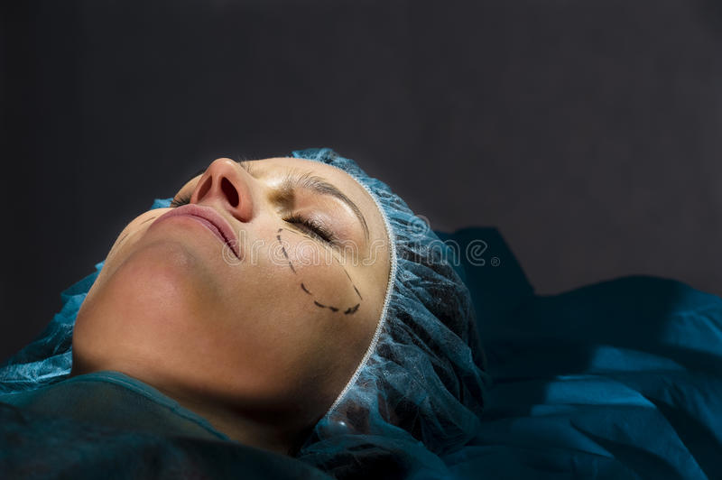 Download Plastic Surgery stock image. Image of surgery, aging - 18252323