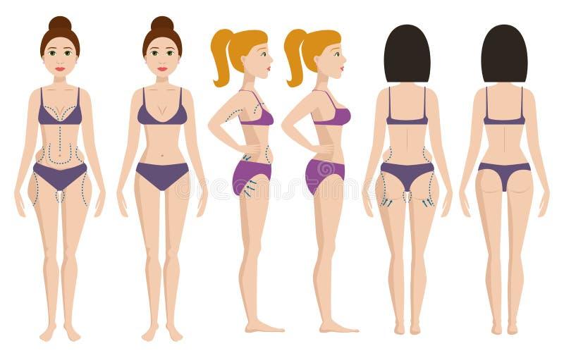 Plastic surgery body parts woman correction anaplasty medicine skin treatment beauty health procedure vector royalty free illustration