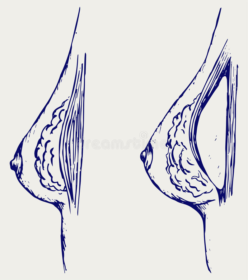 Plastic surgery. Breast implant. Doodle style vector illustration