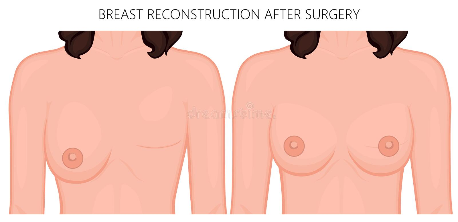 Plastic surgery_Breast reconstruction after surgery. Vector illustration of woman breast reconstruction after surgery. Front view of the woman chest. For royalty free illustration
