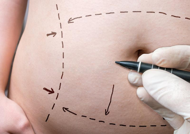 Plastic surgery concept. Hand is drawing lines with marker on belly royalty free stock images