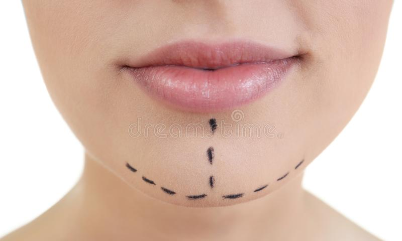Plastic surgery concept. Portrait of beautiful woman stock image