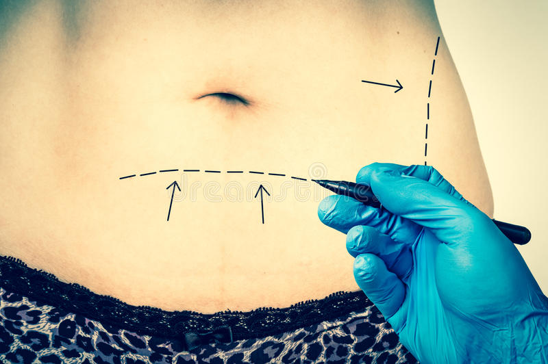 Plastic surgery doctor draw lines on patient belly - retro style royalty free stock images
