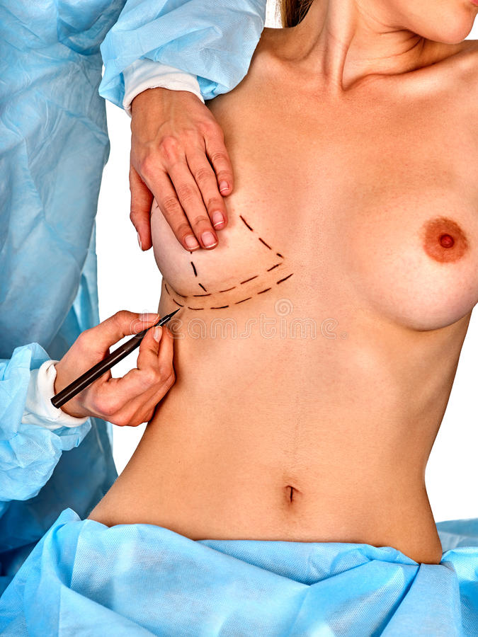 Plastic surgery doctor drawing line woman patient breast augmentation implant stock photography