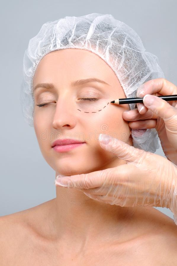 Plastic surgery. Doctor drawing perforation lines on woman`s face stock photo