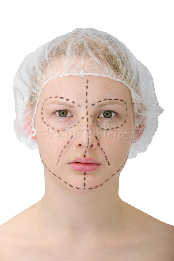 Plastic surgery, face lift stock photos