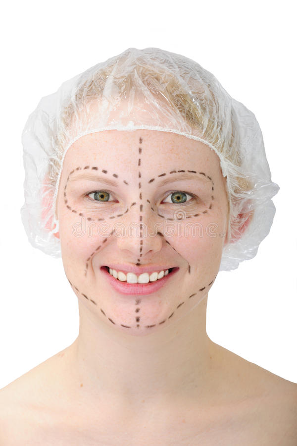 Plastic surgery/ face lift stock photo