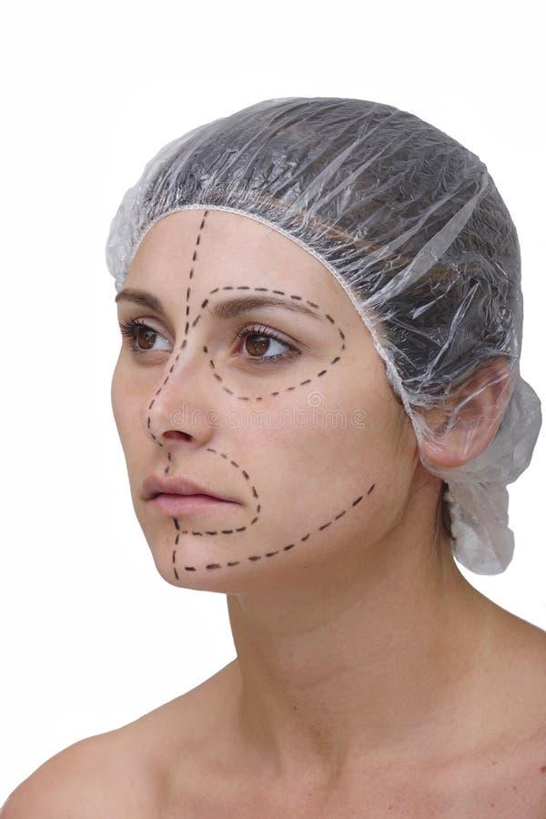 Free Plastic Surgery, Face Lift Royalty Free Stock Photos - 11643438