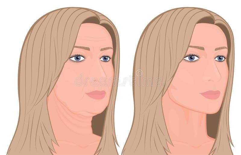 Plastic surgery_Face lifting vector illustration