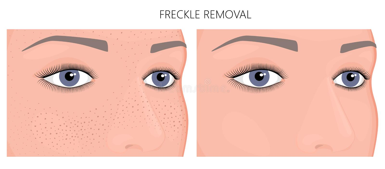 Plastic surgery_Freckle Removal. Vector illustration. Freckle removal on woman face half turn before, after cosmetic procedure. Close up view. For advertising of stock illustration