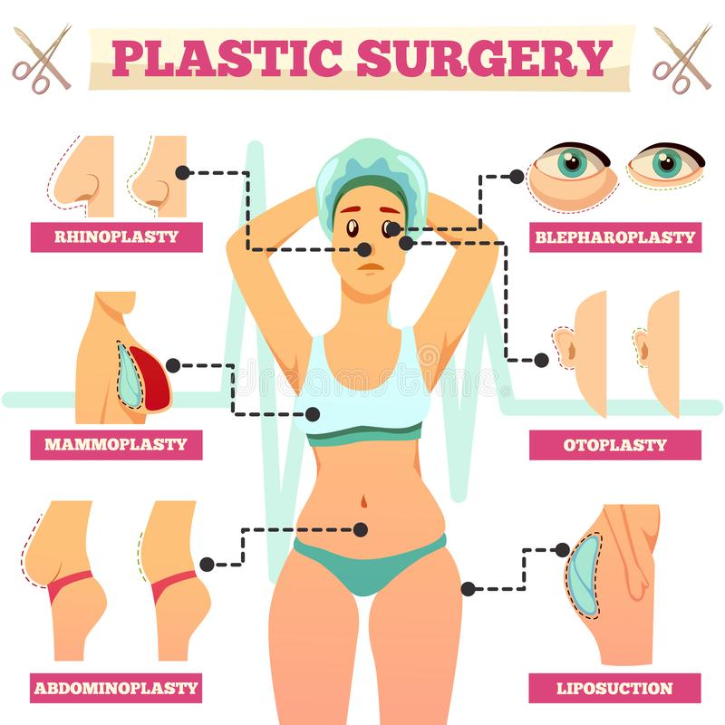 Plastic Surgery Orthogonal Flowchart. With woman and types of operations for face and body flat vector illustration stock illustration