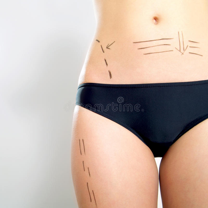 Plastic Surgery Patient S Abdomen And Thigh Stock Photos