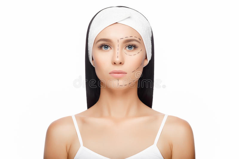 Plastic surgery woman face. Aesthetic surgery. Drawn lines on woman's face, marks for facial plastic surgery. Beautiful Woman before Plastic Surgery Operation stock photos