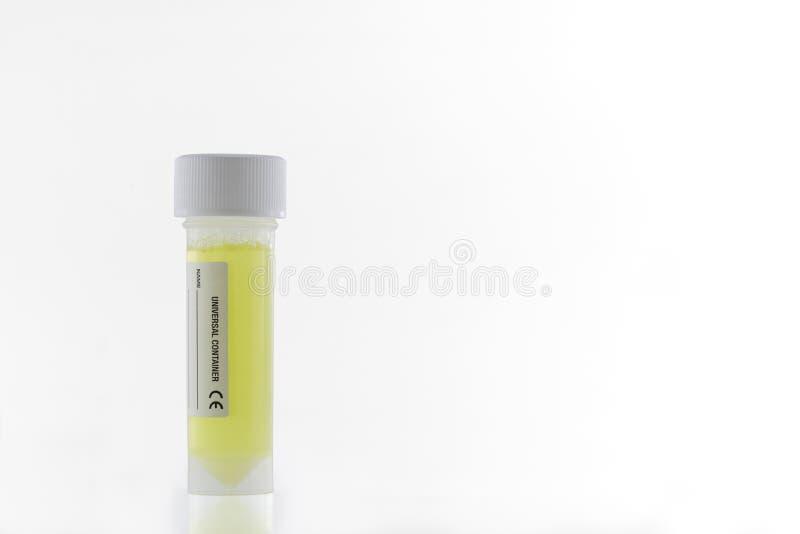 Plastic universele container die gele vloeistof zoals urinesteekproef bevatten op witte achtergrond Met het knippen van weg royalty-vrije stock foto