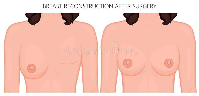 Plastik-surgery_Breast Rekonstruktion nach Chirurgie lizenzfreie abbildung