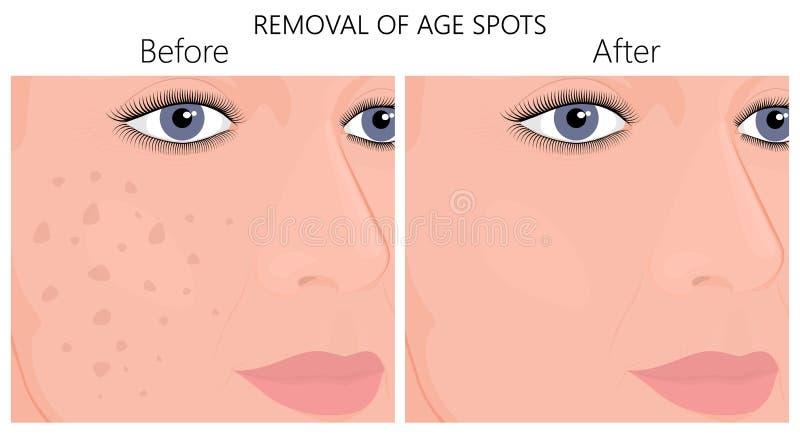 Plastik surgery_Removal von den Altersflecken lizenzfreie abbildung