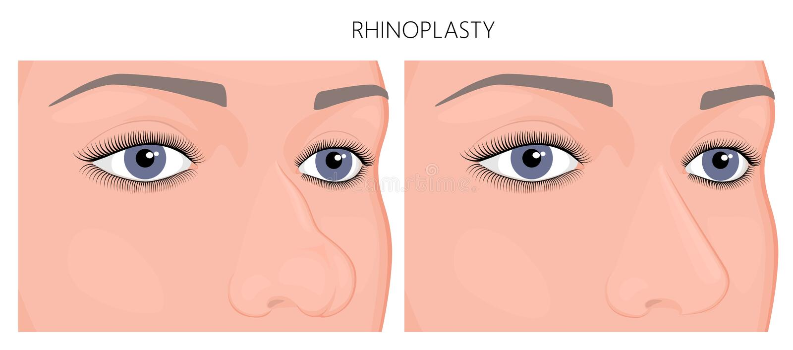 Plastique surgery_Rhinoplasty illustration de vecteur