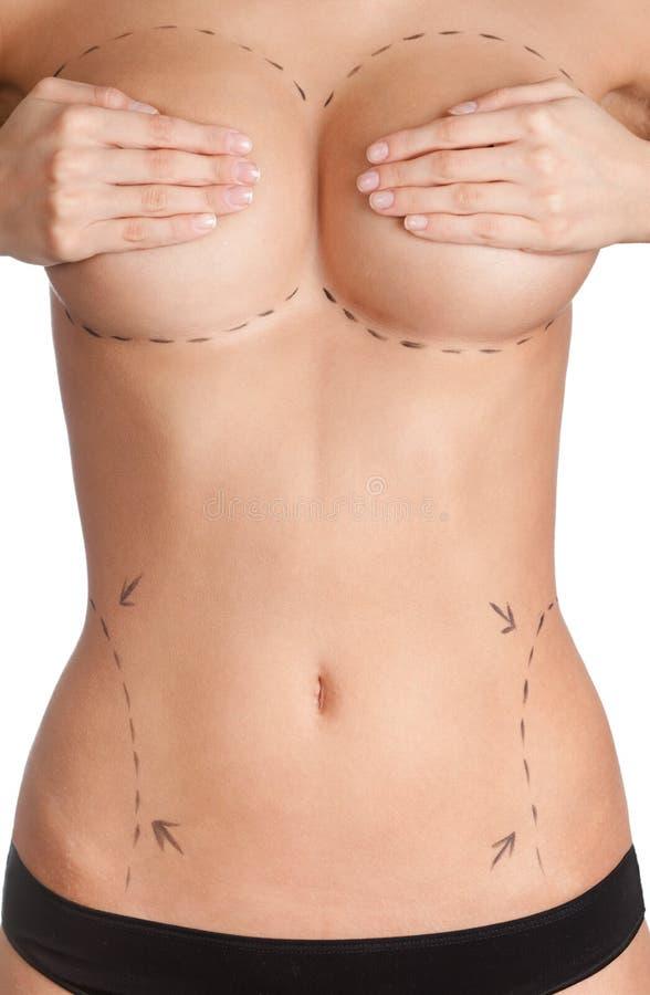 Plastische chirurgie royalty-vrije stock foto's