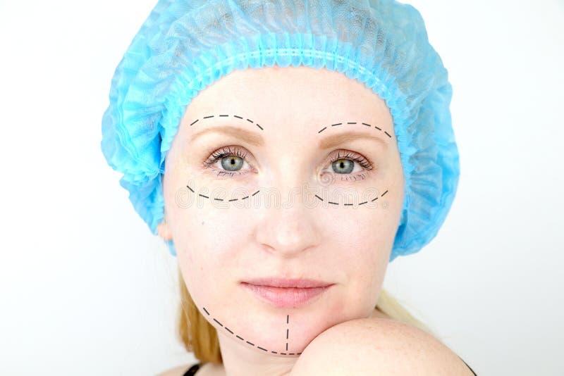 Plastische Gesichtschirurgie oder Verschönerung, Verschönerung, Gesichtskorrektur Ein plastischer Chirurg überprüft einen Patient lizenzfreie stockbilder
